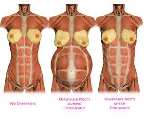 terhesizmok