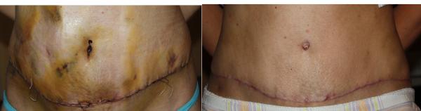 BAL: a műtét után közvetlenül – JOBB: 2,5 hónap elteltével